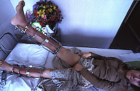 A patient called San Xu measures her progress, her height has increased by 9 cm in around 4 months. Patients in a Guangzhou  hospital are able to extend their leg length after a complicated operation which involves breaking their legs below the knee and placing a steel pin. The legs are stretched using a metal cage. The patients must wait for around 6 months in bed...PHOTO BY SINOPIX