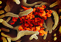 Pictured: This scanning electron microscope image shows SARS-CoV-2 (orange)—also known as 2019-nCoV, the virus that causes COVID-19—isolated from a patient in the U.S., emerging from the surface of cells (gray) cultured in the lab.<br /> Re: Coronavirus Covid-19 world pandemic