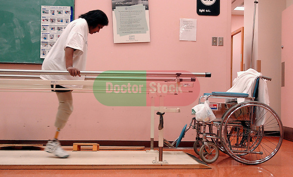 NOT MODEL RELEASED; FOR EDITORIAL USE ONLY... double leg amputee working on parallel bars in rehabilitation center
