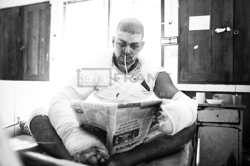 Al-Amin Mollah  at Dhaka Medical College Hospital Burn Unit. He was severly burnt when supportes of nationwide strike torched his bus ont 3rd November 2013 near Gazipur. Dhaka, Bangladesh