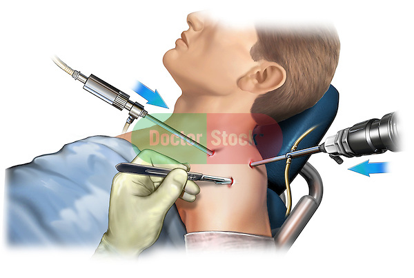 This stock medical image reveals a lateral view of a male undergoing instrument placement into the right shoulder joint for arthroscopic surgery.