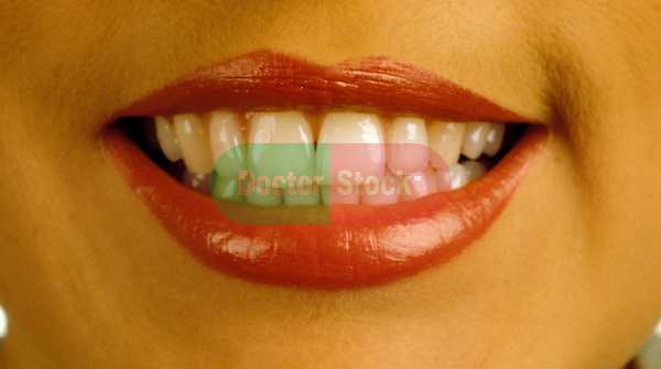 Woman's mouth smiling with lips apart showing teeth