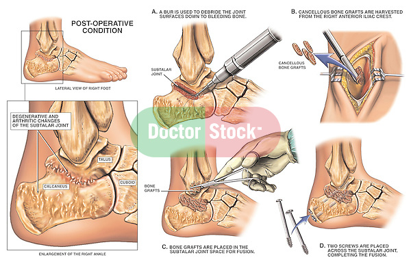 Depicts post-operative degeneration of the right ankle joint with fusion surgery. Shows degenerative arthritis of the subtalar joint. Surgical steps: 1. Debridement of the subtalar joint surfaces down to bleeding bone; 2. Harvesting of bone graft from the right iliac crest of the hip; 3. Placement of graft within the joint space; and 4. Placement of two fixation screws across the subtalar joint to complete the fusion.