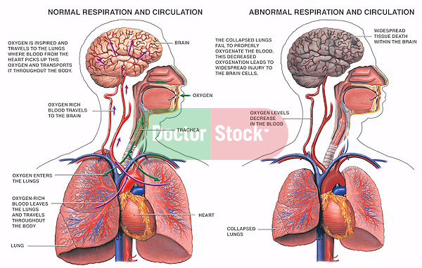 Collapsed lung with resultant brain damage. Shows oxygen-rich blood traveling from the lungs to the brain. Labeled items include the brain, trachea, oxygen, heart and lungs. Depicts oxygen transfer into the blood stream, which travels via arteries to the brain. In the second image, the lungs are shown collapsed, with decreased oxygen levels flowing to the brain (hypoxia). The brain is darkened to indicate widespread tissue death.