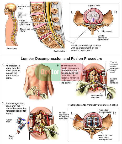 Lumbar Spine Injury - L5-S1 Disc Herniation with Posterior Spinal Fusion Surgery. This medical illustration series reveals a central disc herniation at the L5-S1 level followed by surgical steps of the following: 1. Posterior incision, 2. Decompression laminectomy and discectomy, and 3. Placement of fusion cages packed with bone graft between L5 and S1.