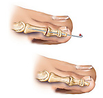This medical artwork features two drawings of the post-surgical condition of hammer toe surgery. In the first image, the proximal interphalangeal joint of the lesser toe is straightened and fixated with a K-wire or pin. The second figure depicts the PIP joint already fused.