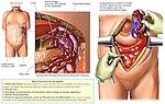 Ruptured Spleen with Splenectomy Surgery.