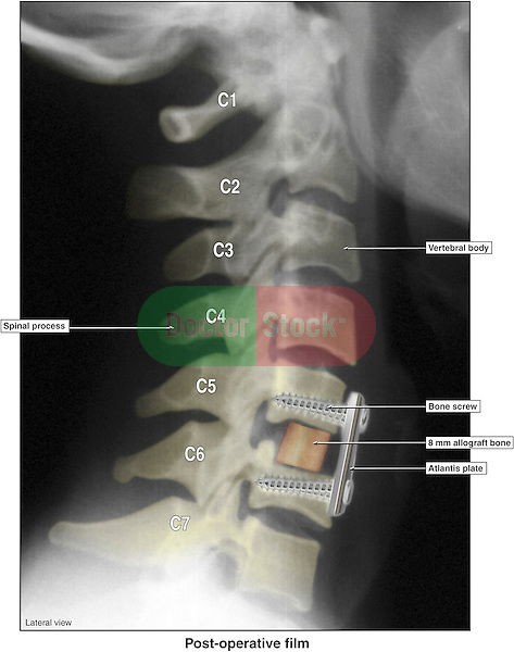 Anterior Cervical Discectomy and Fusion with Application of Atlantis Hardware on X-ray Film.