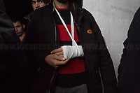Ihsanullah from Afghanistan: left arm broken and beaten on the left shoulder with a police truncheon. Phone, money, clothes, shoes took away allegedly by the Croatian border police.<br />