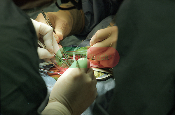 detail of surgeons hands holding clamp, tweezers during delicate brain surgery
