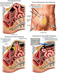 Hernia Surgery. This full color medical exhibit depicts a laparoscopic ventral hernia repair. It consists of a pre-operative view and three steps of surgical repair using a Gore-Tex Mesh to prevent herniation from occurring again.