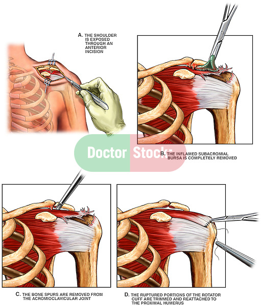 Shoulder - Surgical Acromioplasty, Subacromial Bursectomy and Rotator Cuff Reconstruction Surgery