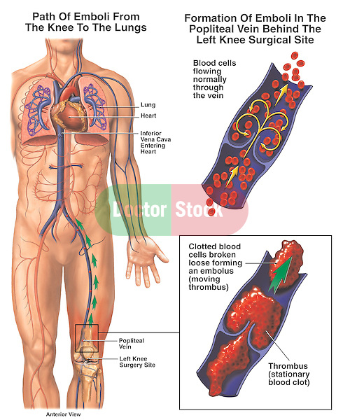 Accurate depiction of the formation and movement of post-operative pulmonary emboli from the left knee through the heart and into the lungs. It shows the path of the embolism from a surgical site in the popliteal vein, moving to the inferior vena cava through the heart and into the lungs. Cut sections through a vein illustrate blood flowing normally, and thrombus formation. Also depicts clotted blood breaking free and forming a moving thrombus or embolus.