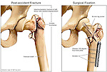 Fractured (Broken) Hip with Fixation Surgery. This medical illustration series features and pre-operative and post-operative images of the bones of the left femur and hip joint. The pre-operative view reveals a comminuted, displaced, intertrochanteric fracture through the femoral neck. The post-operative view shows the same hip after fixation surgery revealing fixation with side plate and multiple screws.