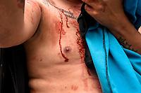 CALARCA - COLOMBIA, 30-04-2021: Un manifestante resulta herido en los enfrentamientos con la policía en la vía que conduce al altop de La Línea durante el tercer día de Paro Nacional en Colombia hoy, 30 abril de 2021, y que comenzó el pasado 28 de abril de 2021 para protestar por la reforma tributaria que adelanta el gobierno de Ivan Duque además de la precaria situación social y económica que vive Colombia. El paro fue convocado por sindicatos, organizaciones sociales, estudiantes y la oposición. / A protester is injured in clashes with the police on the road that leads to the top of La Línea during the third day of the National Strike in Colombia today, April 30, 2021, and which began on April 28, 2021 to protest the tax reform that the government of Ivan Duque is also advancing of the precarious social and economic situation that Colombia is experiencing. The strike was called by unions, social organizations, students and the opposition in Colombia. Photo: VizzorImage / Santiago Castro / Cont