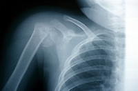 An x-ray of a fracture of humerus in a child. This image may only be used to portray the subject in a positive manner..©shoutpictures.com..john@shoutpictures.com