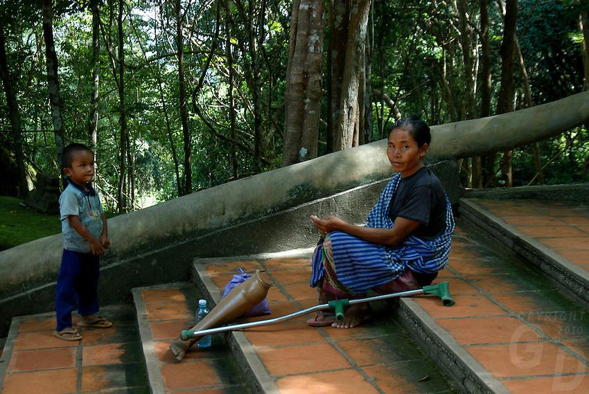 Land mine victim at the stairs Phnom Kulen, Cambodia