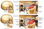 This medical exhibit depicts the anterior displacement of the temporomandibular joint, or TMJ, from the RIGHT side. Two illustrations of a lateral (side) view of the skull show the mandible (jaw) open and closed, revealing the displacement of the TMJ meniscus. To the immediate right are two enlarged cut-away sections of the dysfunctional TMJ showing the area in more detail. Labeled structures include the pterygoid muscle, mandible, temporal bone, meniscus, condyle and joint capsule.