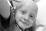 Smiling face of three year old boy suffering from cancer, bald from treatment
