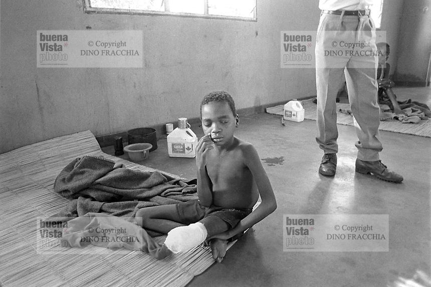 - Mozambique 1993, country hospital in Inhaminga village, province of Sofala, child mutilated by a mine<br /> <br /> - Mozambico 1993, ospedale rurale nel villaggio di Inhaminga, provincia di Sofala, bambino mutilato da una mina