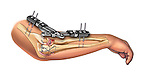 Proximal ulna and radius fracture internal and external fixation