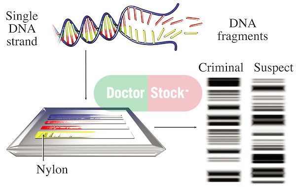 DNA Testing Results. This medical exhibit clarifies the manner in which a single strand of DNA can be used as evidence in a criminal case.