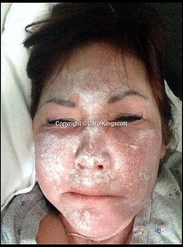 BNPS.co.uk (01202 558833)<br /> Pic: CarolKingscott/BNPS<br /> <br /> Carol Kingscott 12 hours after her botox injection. Calamine lotion was applied on Carol's face.<br /> <br /> A bogus cosmetic surgeon who inflicted grievous bodily harm on two female clients by injecting them with fake Botox has today been jailed for four years.<br /> <br /> Ozan Melin, 42, left the women in severe pain and with long-lasting damage to their faces after using an 'unknown and extremely dangerous substance' on them.<br /> <br /> Marcelle King and Carol Kingscott's faces puffed up so much they couldn't see and Mrs King had to be hospitalised after suffering a reaction similar to anaphylactic shock.<br /> <br /> Mrs King said she thought she was going to die and Ms Kingscott said she considered suicide because of the disfigurement to her face.