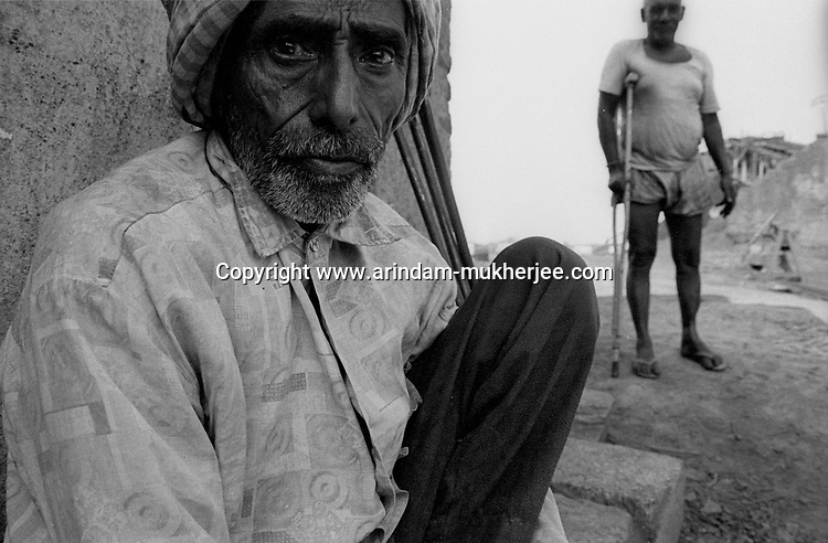 Bhuban Sing was a miner but presently works as a sweeper after he lost his leg in a minor mine accident. Ranigaunj, West Bengal, India. Arindam Mukherjee