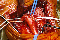 Carotid endarterectomy surgery. Incision is deepened to expose the bifurcation of the carotid artery. The internal jugular vein and cranial nerves are then identified. Silastic slings are placed around the main arteries...©shoutpictures.com.john@shoutpictures.com