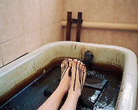 A woman bathes in a bath of oil at the Naftalan sanatorium. Each session, patients bathe for ten minutes in a tub of crude oil. The oil is heated to 37 degrees for optimum effectiveness.