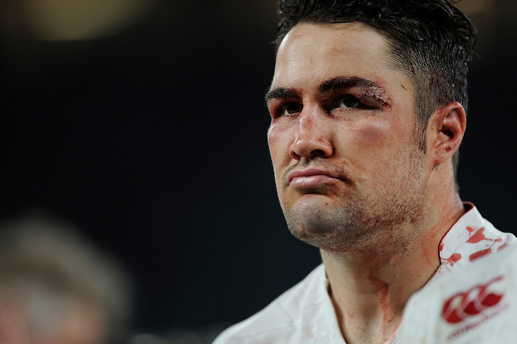 Brad Barritt of England shows his battle scars after the QBE International match between England and Australia at Twickenham Stadium on Saturday 29th November 2014 (Photo by Rob Munro)