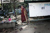 A Burmese monk, who lost the lower part of his left leg, receives treatment at Mae Tao Clinic, on the Burma-Thai border town of Mae Sot. The clinic was established by Dr. Cynthia Maung, a Burmese-Karen woman, to offer free medical services to Burmese who do not qualify for treatment at the local Mae Sot Hospital. He lost his leg after being shot and beaten by the Burmese Army during the 2007 anti Burmese government protests that became known as the Saffron Revolution.