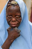 NIGER Maradi, leprosy colony, woman suffers from leprosy / NIGER Maradi, Leprakolonie, Portraet einer Frau mit lepra Erkrankung