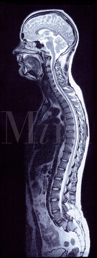 RELEASED..MRI X-ray image of human body