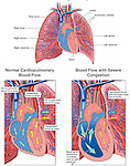 Pulmonary Edema (Lung Congestion). This medical exhibit includes the general anatomy of the heart and the lungs. The normal cardiopulmonary blood flow is illustrated and is compared to blood flow with congested lungs.