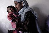 Afghanistan Malnutrition 2001