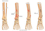 Progression of Leg Fracture. Depicts the improper healing of a broken leg in the region of the ankle.