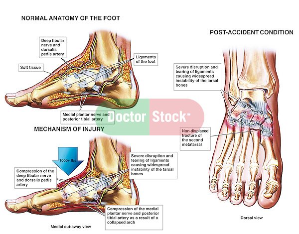 Foot - Crushed Fracture Injury. Depicts a compression of the deep fibular and medial plantar nerves, a compression of the dorsalis pedis and posterior tibialis arteries, disruption and tearing of ligaments, a collapsed arch of the foot, and a non-displaced fracture of the second metatarsal. A dorsal view of the crushed foot is also included to reveal the ligament injuries and foot fracture, otherwise unable to be viewed the side.