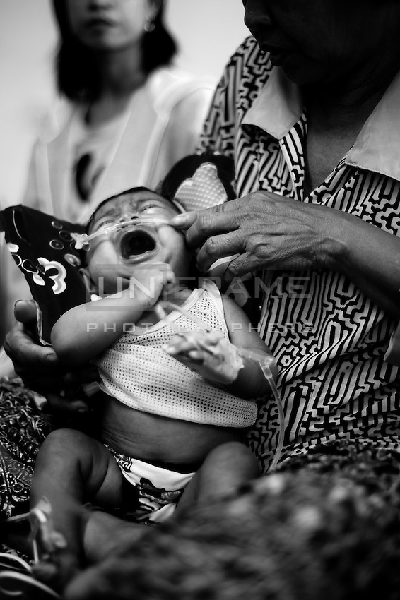 Deseased child crying on his grandmother's hands. According to most recent data child mortality rates, as well as other maternal health indicators, have improved in recent years.