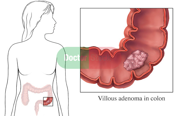 This medical exhibit portrays a villous adenoma within a cut-away anterior (front) view of the colon. An orientation illustration is included, showing where the colon is located within an outline of a female figure. A label identifies the villous adenoma.