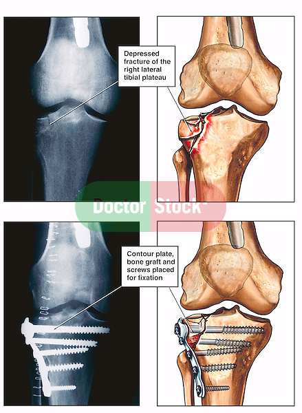 This medical-legal exhibit depicts a right tibial plateau fracture with subsequent surgical fixation using two pairs of illustrated radiographic interpretations.  The first pair shows the post-accident appearance of the depressed fracture. The second pictures the surgical fixation with a contour plate, bone graft and screws.