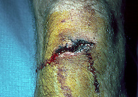 Laceration - knee. This image may only be used to portray the subject in a positive manner..©shoutpictures.com..john@shoutpictures.com