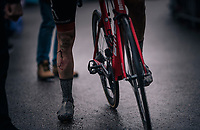 Alessandro De Marchi (ITA/BMC) after finishing the stage where he fell into a raveen while riding in the breakaway group<br /> <br /> 76th Paris-Nice 2018<br /> Stage 7: Nice > Valdeblore La Colmiane (175km)
