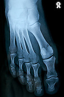 X-ray image of mature man's feet (Licence this image exclusively with Getty: http://www.gettyimages.com/detail/sb10067234k-001 )