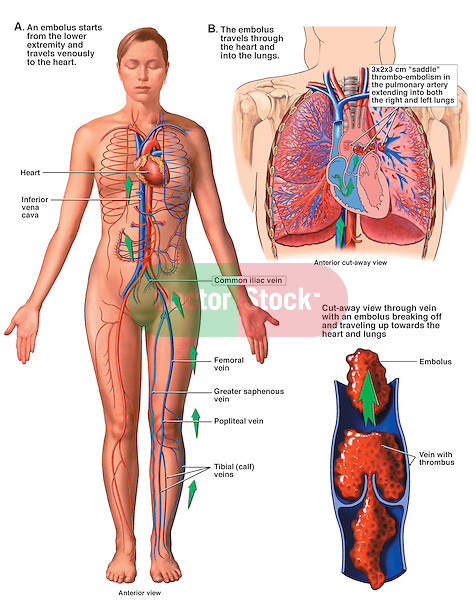 Mechanism of Pulmonary Embolism. This stock medical exhibit reveals images of a female exhibiting typical aspects of deep vein thrombosis (DVT). Images include the following: 1. Anterior overview of the body showing the path clots take from the lower extremities to the heart and lungs, 2. Detailed enlargement of a thrombus formation and an embolus (blood clot) breaking off, 3. Final image of the thorax showing the passage of clots through the heart to the lungs.