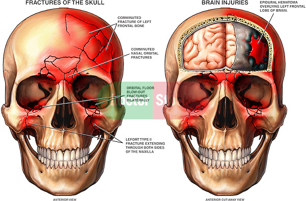 Head Injury - Skull Fractures and Hematoma on the Brain.