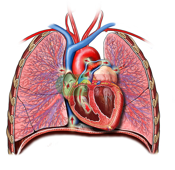 Embolus in the heart and lungs