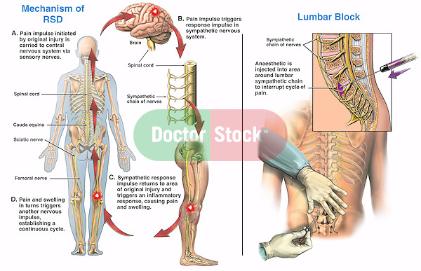 Mechanism of reflex sympathetic dystrophy (RSD) of the right leg with  lumbar sympathetic chain block surgery. The pain pathway of RSD originates here in the leg, coursing through the sciatic nerve to the spinal cord to the brain, triggering a sympathetic inflammatory response in the leg, resulting in pain and swelling. Also shown is the sympathetic chain ganglia in the region of the lumbar spine and sacrum with anesthetic being injected into the region of L5 and S1 to break the cycle of pain.