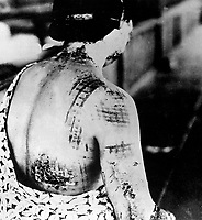 The patient's skin is burned in a pattern corresponding to the dark portions of a kimono worn at the time of the explosion.  Japan, ca. 1945.  (Corps of Engineers)<br /> Exact Date Shot Unknown<br /> NARA FILE #:  077-MDH-6.55b<br /> WAR & CONFLICT BOOK #:  1244