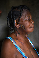 Haiti, Gros-Morne. Dorcilien Caridad had an eight pound tumor removed from the side of her face with financial help from Mercy Beyond Borders.